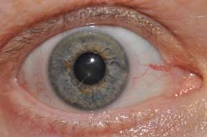 iridology right iris