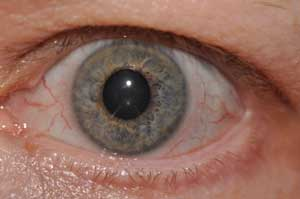 iridology-left-iris